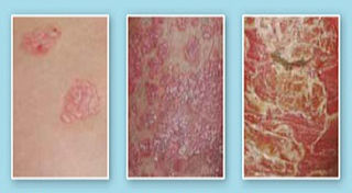 stages of psoriasis