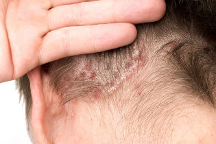 Exacerbation of psoriasis on the head