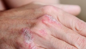 symptoms of early stage psoriasis
