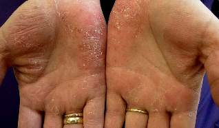 medications for the treatment of psoriasis