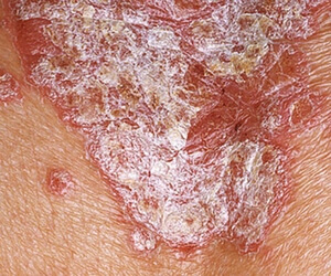 Static stage of psoriasis