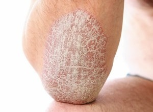 main manifestations of psoriasis