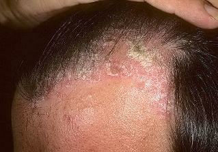 psoriasis on the head